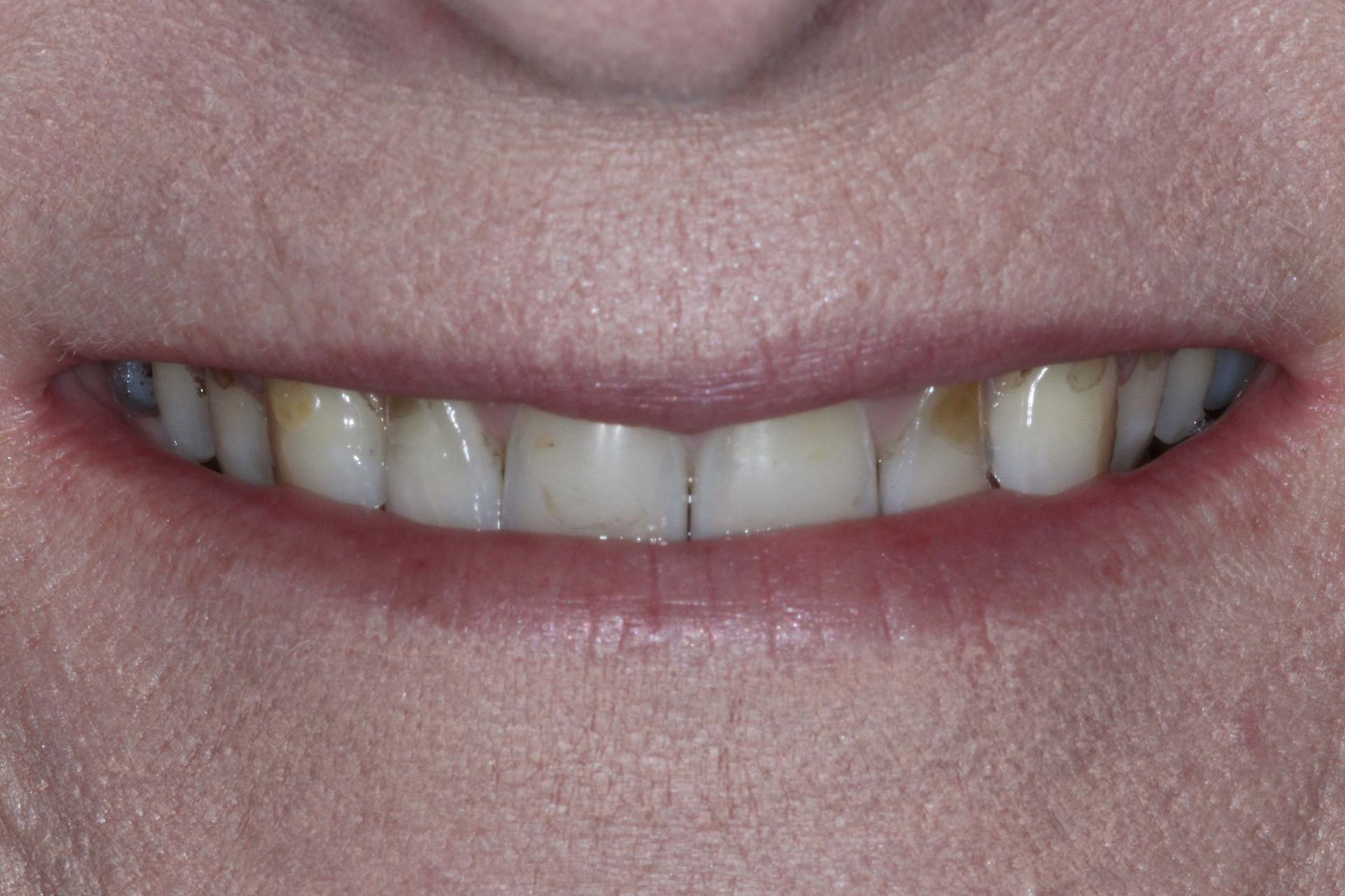 Veneers-Before-Photos