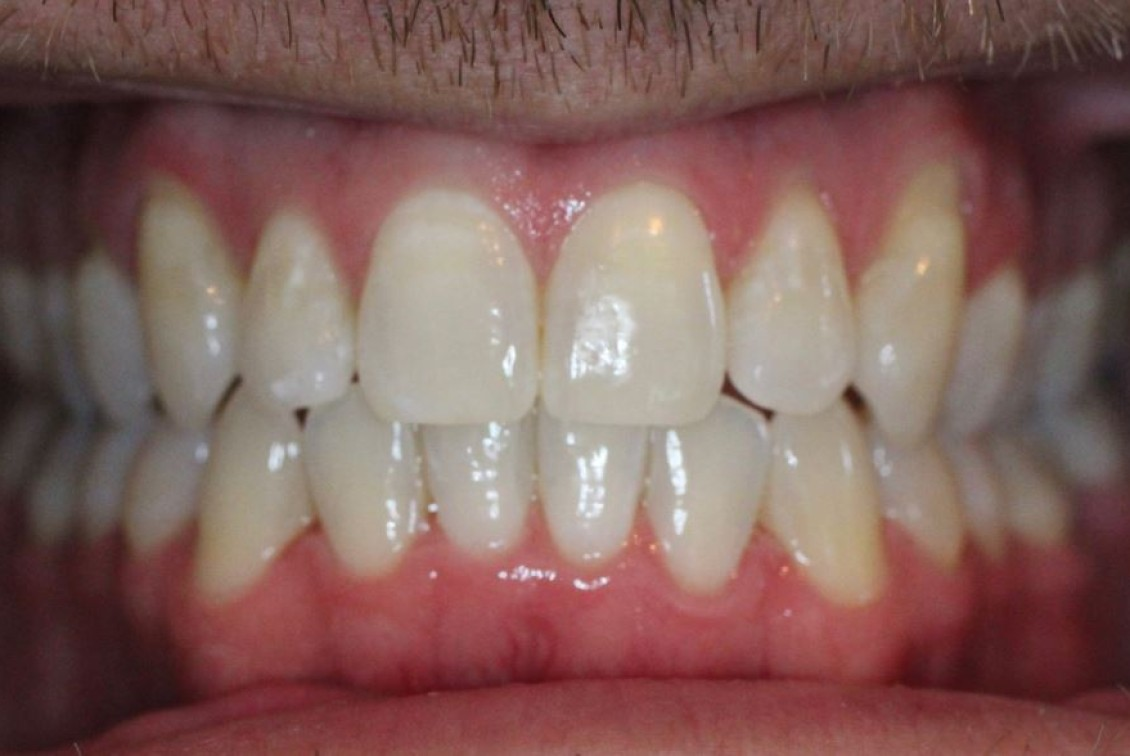Straight teeth after Invisalign