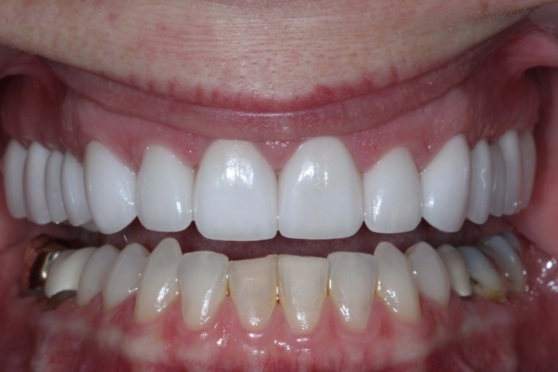 fmc-After-Photos-full-mouth-reconstruction-2
