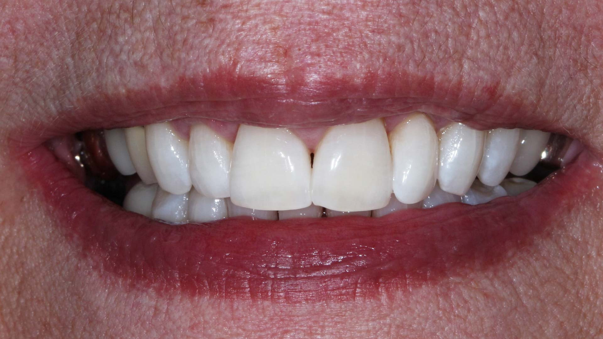 tw-After-Photos-teeth-whitening